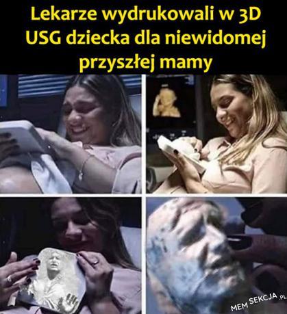 Wydrukowane w 3D USG dziecka